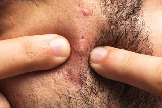 does acne scarring beard growth